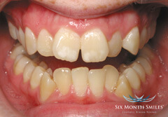 Six Month Smiles - Before
